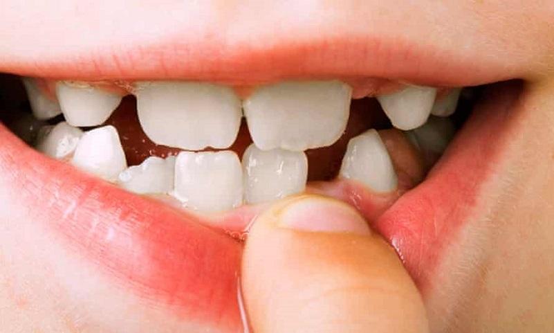 牙周炎的五步治療的方法